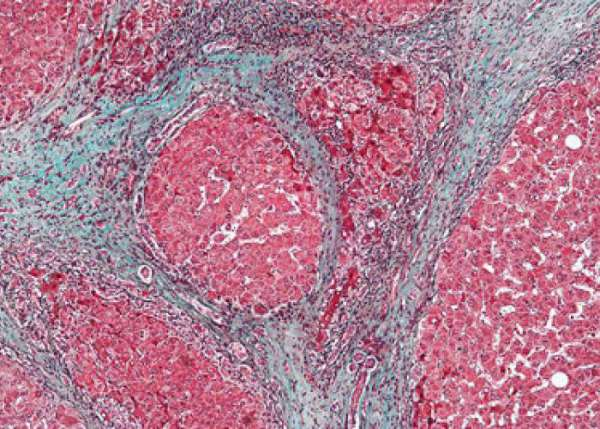 Высокая вирусная нагрузка при гепатите с